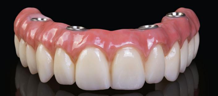All on 4® implant and zirconia bridge